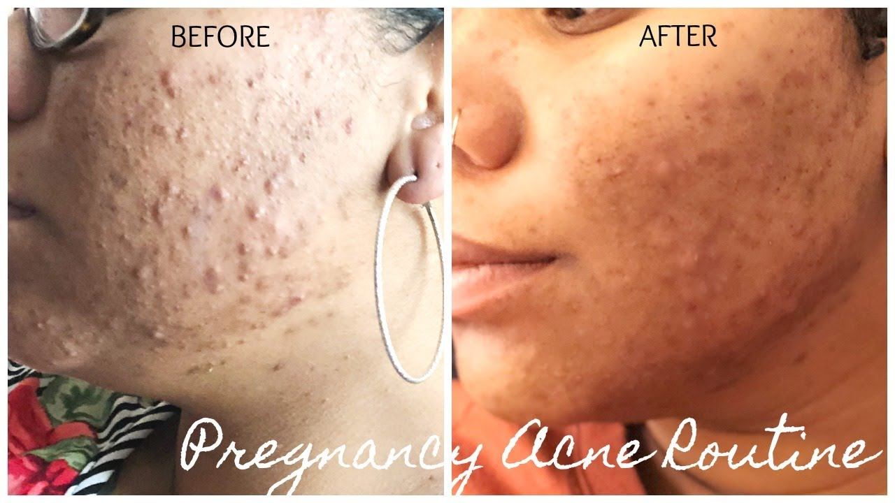 pregnancy acne routine that works! youtubepregnancy acne routine that works!