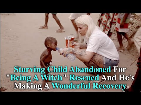 """Starving Child Abandoned For """"Being A Witch"""" Rescued And He's Making A Wonderful Recovery"""