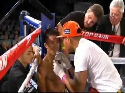 Jessie Magdaleno vs Rey Perez Full Fight