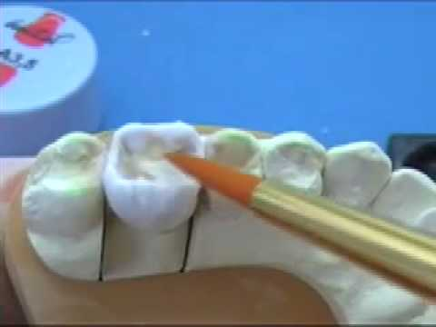 Molar build up