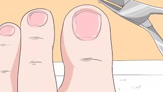 How to Fix Thick Toenails