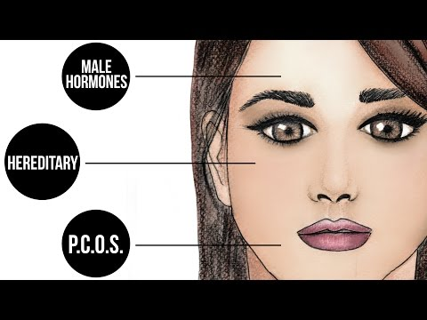 Why Do Women Get Facial Hair? | Expert Advice