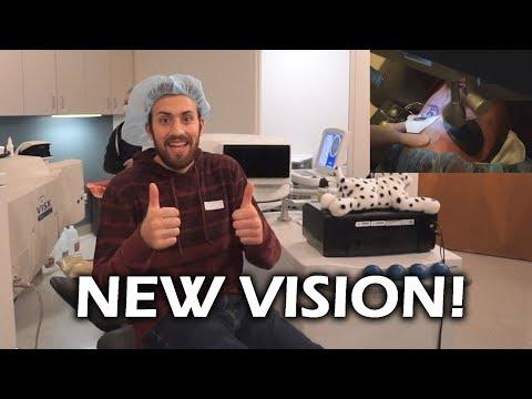 Lasik Eye Surgery Experience with Lasik Plus