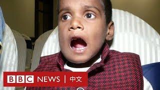 牙瘤再現印度 清奈男童口腔拔牙500顆 - BBC News 中文