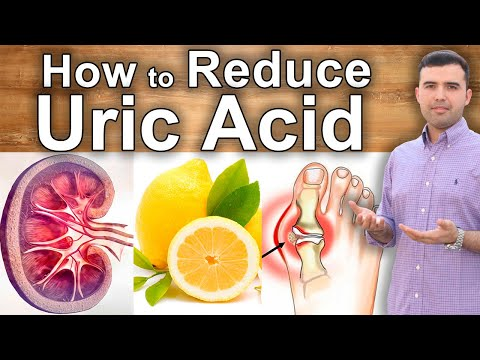 How To Lower Uric Acid And Heal Gout - What To Eat, Home Remedies And Supplements