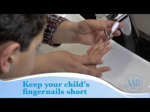 Eczema: Tips to help your child feel better
