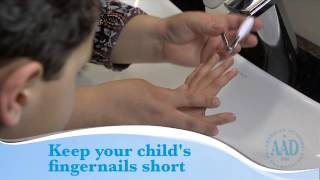 Eczema: Tips to help your child feel better video