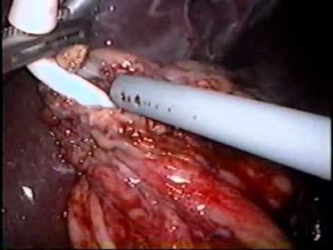 Band Erosion: Laparoscopic Lap-Band Removal