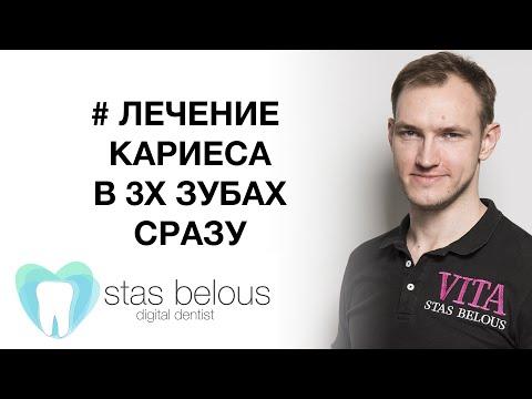Виниры: цена и отзывы в Киеве - установка виниров