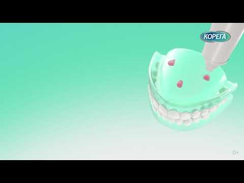 как применять крем для фиксации зубных протезов_30sec_0+