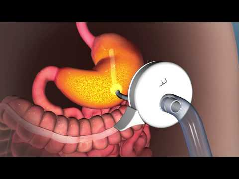 AspireAssist: New, Reversible Weight Loss Procedure