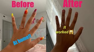 I removed my acrylic nails at HOME😮😮* it WORKED*
