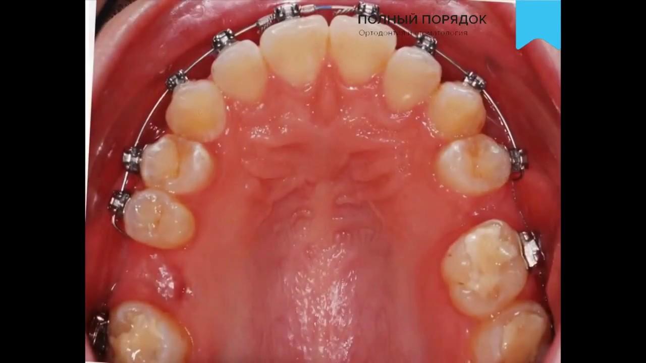 Неровные зубы? Клык стоит не на своем месте? Лечение брекет .