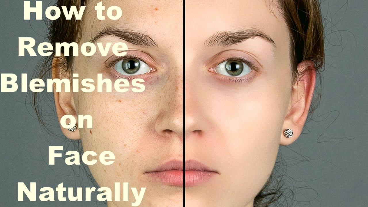How To Get Blemish Free Face Naturally