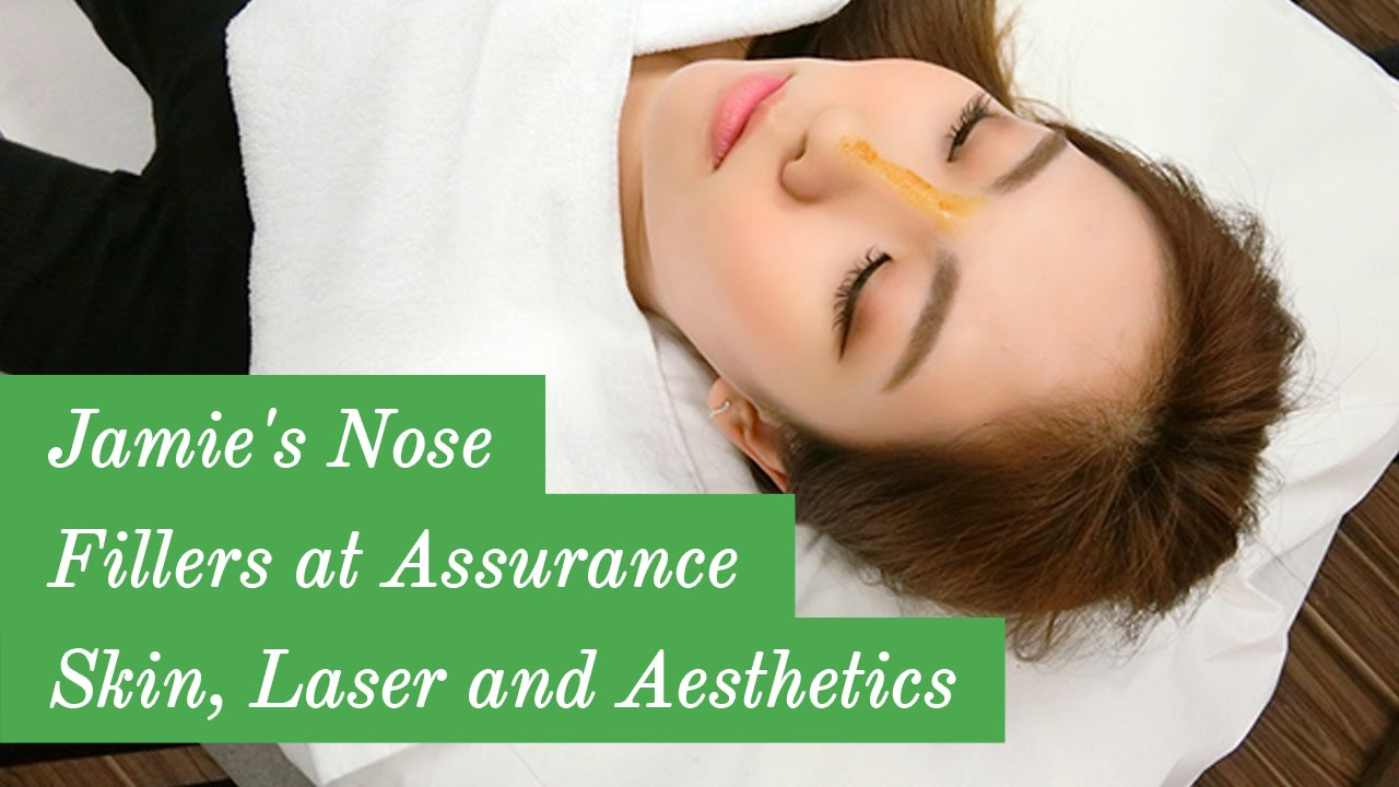 Blogger Jamie's Nose Fillers at Assurance Skin, Laser and Aesthetics
