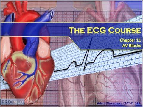the-ecg-course---av-blocks