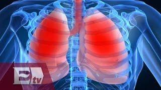 Normal presión pulmonar arterial embolia y