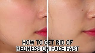 How To Get Rid of Redness on Face Fast | Wishtrend Beauty Lab