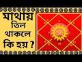 মাথায় তিল থাকলে কি হয়?/ bangla astrology tips/mathai til thakle ki ki hai