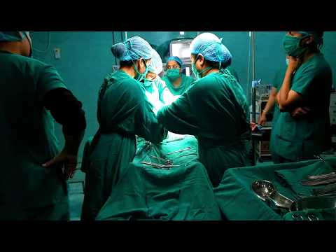 cesarean-section-delivery