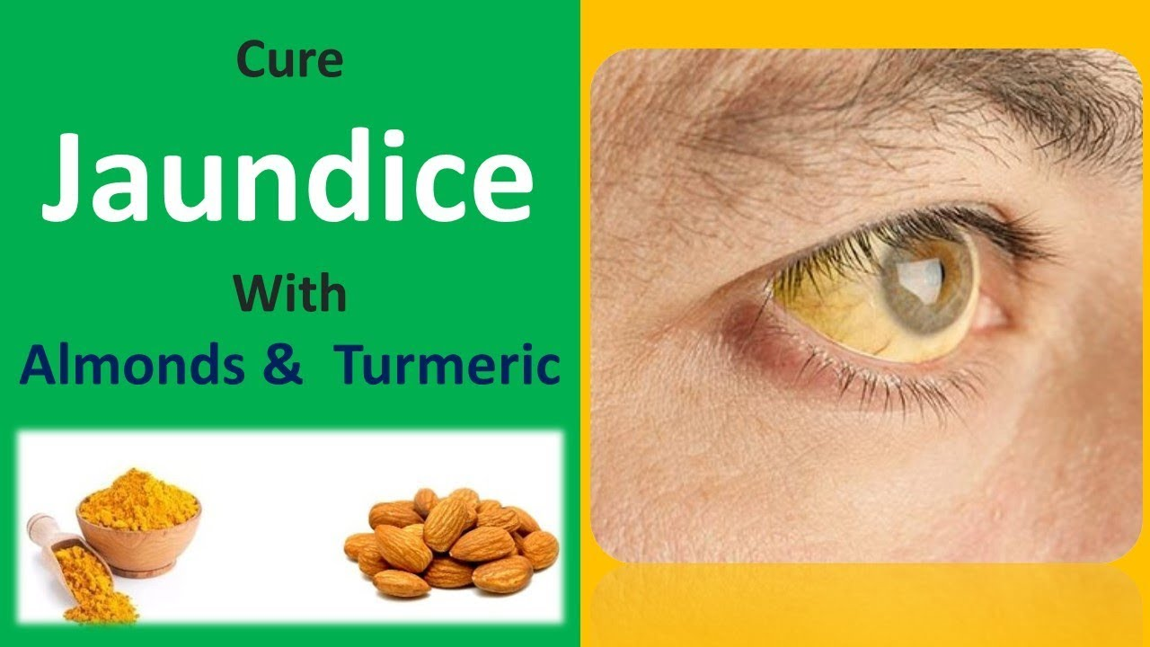 Best Home Remedy For Treatment Of Jaundice Cure Jaundice With - Best home remedies for jaundice its causes and symptoms