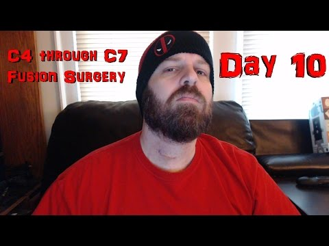 c4-through-c7-disc-surgery---recovery-day-10