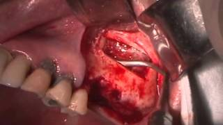 [WADE] Lateral Sinus Approach utilizing Piezoelectric Device #2