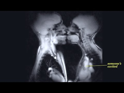 X ray of people having sex