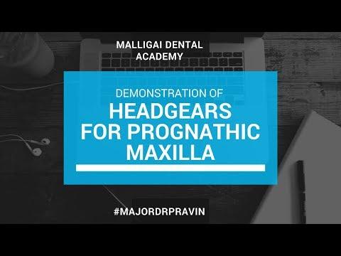Interceptive Orthodontics - Headgears For Correcting Maxillary Prognathism