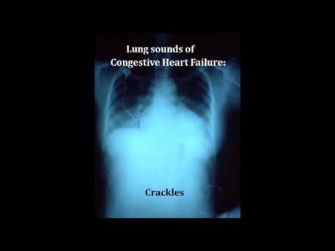 lung sounds - crackles