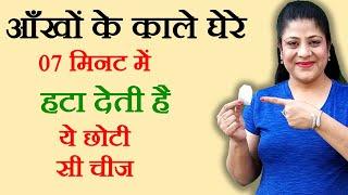 Get Rid of Dark Circles - Home Remedies to Remove Dark Circles under eyes (Hindi) - BeautyPagent Ep5