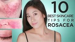 hqdefault - Acne Rosacea Oily Skin