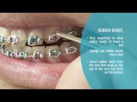 How to Brush and Maintain your Teeth with Braces