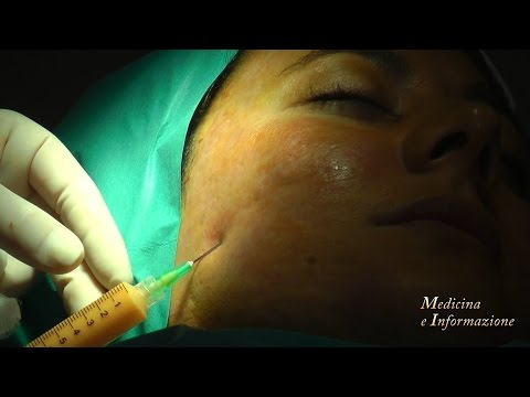 acne:-nuova-tecnica-con-cellule-staminali-e-laser-per-eliminare-le-cicatrici