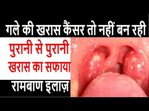 गले की खरास का रामबाण इलाज़ ,Gale ka kharas ka ramban ilaz, Sore Throat Treatment,گلے کی سوزش کے علاج