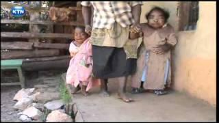 Maisha Peupe - Watoto wanao ugua uvimbe