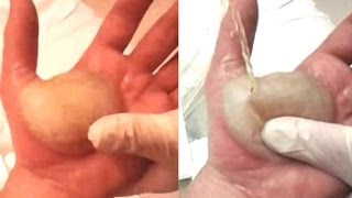 Man Pops The Biggest Blister Known To Man