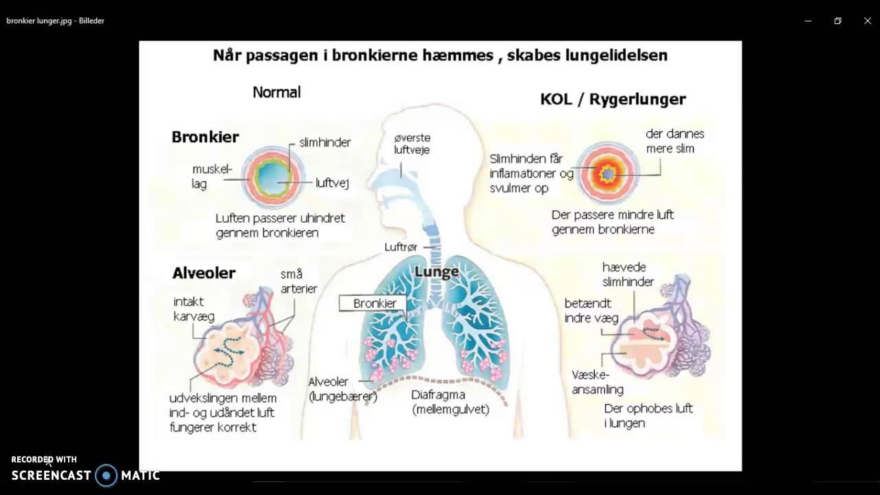 Case om respiration - somatisk sygdomslære