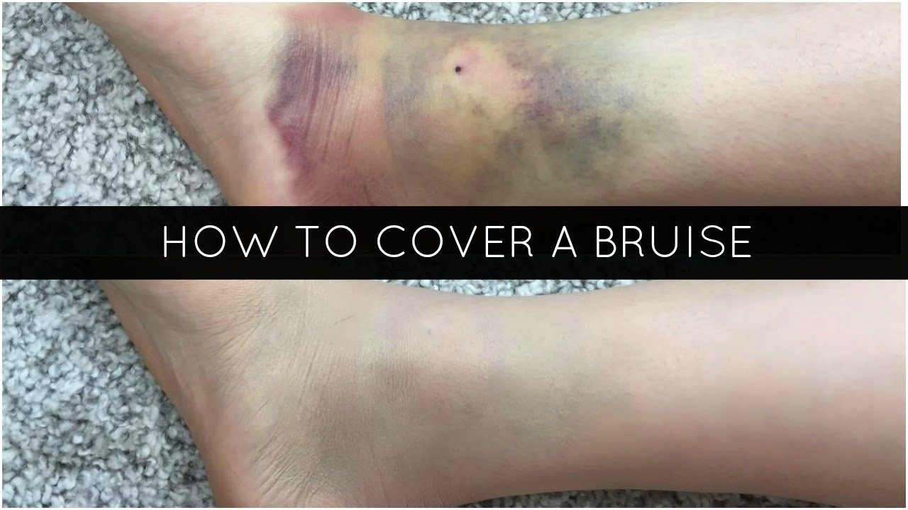 How to cover the bruises under the eyes at home: recommendations and methods 1
