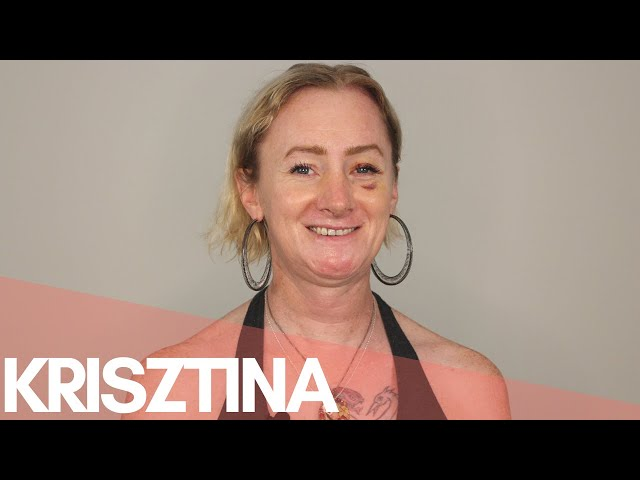 COVID-19 & FFS Surgery | Krisztina | Mental Health as a patient