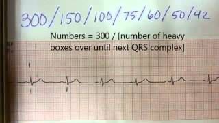 How to find heart rate (pulse) from EKG