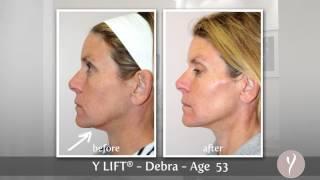 Y LIFT ® 2013 - Debra | Instant, Non Surgical Facelift