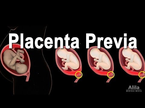 Low Lying Placenta Placenta Previa, Animation