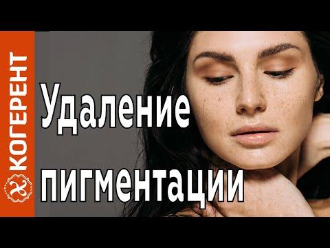 После удаления полипа!: 📌 вопросы гинекологии и советы по