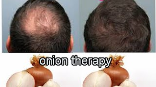 How to  Growth Hair Naturally within a month a onion therapy
