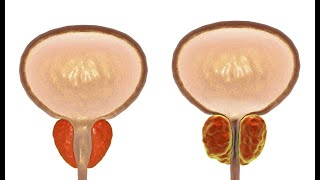 A prosztatitis ichthyol kenőcsének kezelése