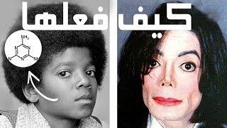 كيف غير مايكل جاكسون لون جلده؟؟