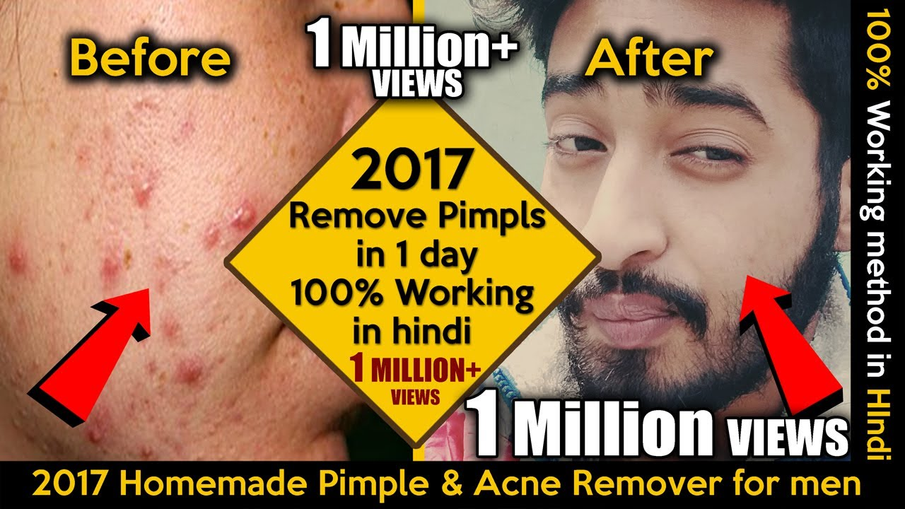 How To Remove Pimples In One Day 100 Working In Hindi 2017