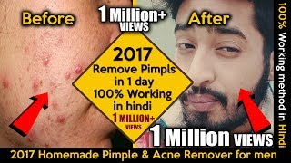 How Remove Pimples One Day Working Hindi
