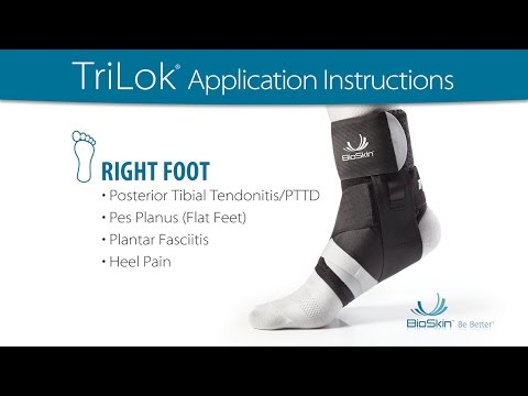 Aircast Airlift Flat Foot PTTD Ankle Brace Fallen Arches Tibialis